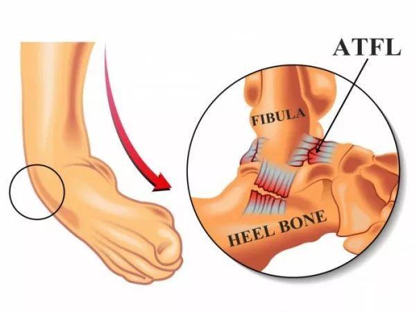 崴脚常见却很危险,告诉你踝关节扭伤的真相